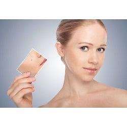 €29 Acne Treatment & Care